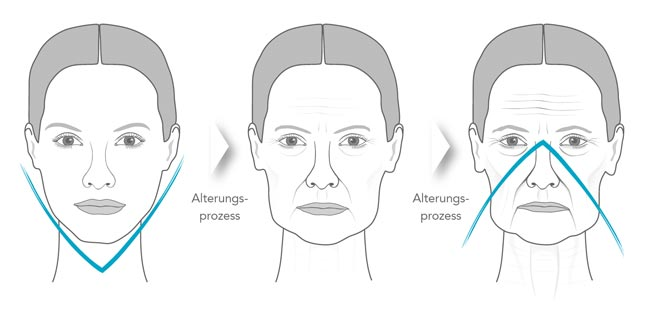 Wrinkle treatment dr pavicic dermatologist munich while the rest of the face continues to look tired and sunken or can treat the actual cause of these creases namely the loss of soft tissue solutioingenieria Choice Image